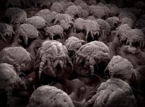 Dust mite image